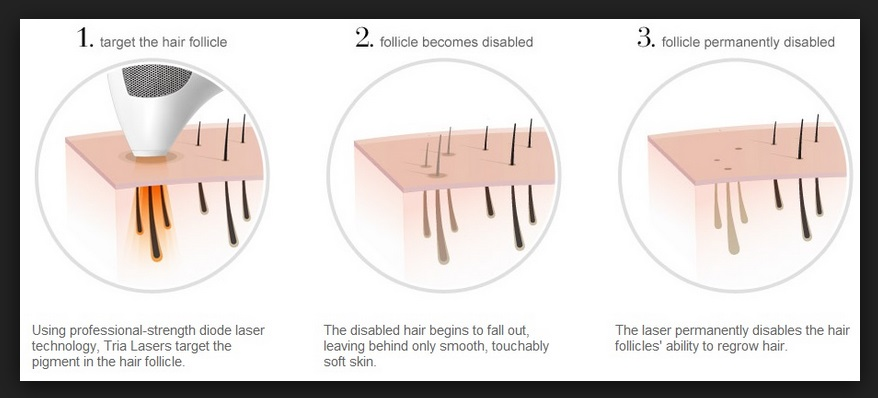 Laser Hair Removal at Home - Tria Hair Removal Reviews